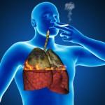 Prečistite si svoje pľúca od toxínov a nikotínu v priebehu 72 hodín